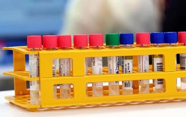 У Запоріжжі виявили спалах коронавірусу в гуртожитку