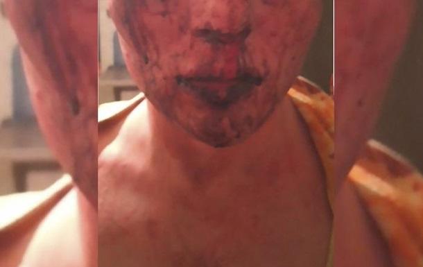 В Житомире 19-летнего парня изнасиловала и избила группа подростков