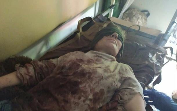 На лінії розмежування в зоні ООС жінці відірвало ногу. 18+