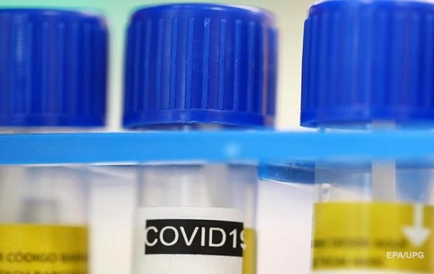 В Черкасской области выявили вспышку COVID-19 в интернате
