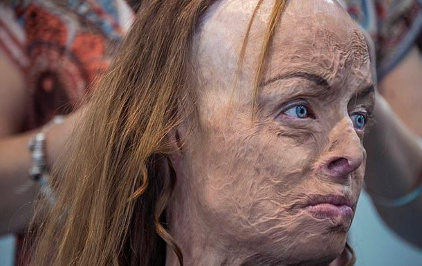 Жінка з опіками по всьому тілу знялася оголеною
