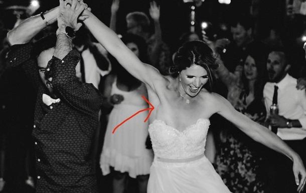 Свадебная фотография помогла невесте выявить рак