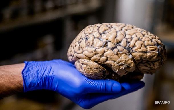 Вчені попередили про загрозу СОVID для мозку