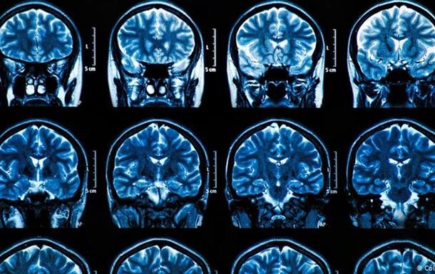 COVID-19 може серйозно зашкодити мозку