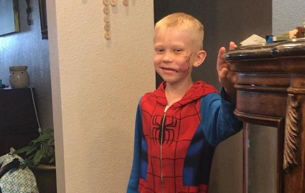 Спасшему сестру от нападения собаки 6-летнему мальчику наложили 90 швов: фото, видео