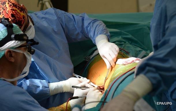 У МОЗ розповіли, що потрібно для розвитку трансплантації