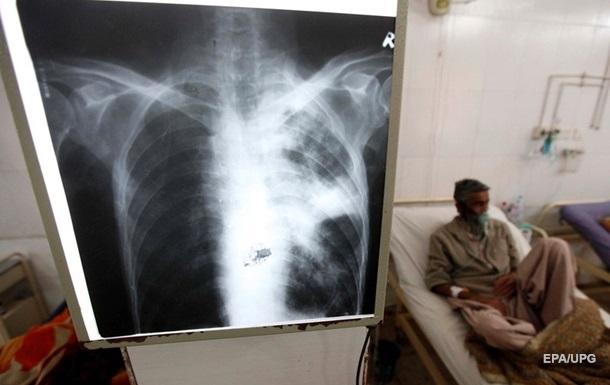 Ученые открыли механизм самоуничтожения туберкулеза