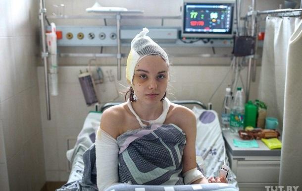 У лікарнях Мінська перебуває 150 потерпілих