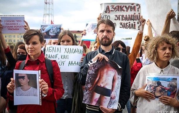 Правозащитники насчитали 450 жертв пыток в Беларуси