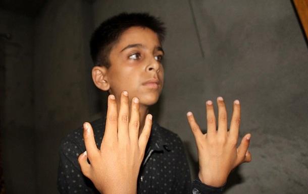 Хлопчику з Індії зайві пальці допомагають досягати успіхів