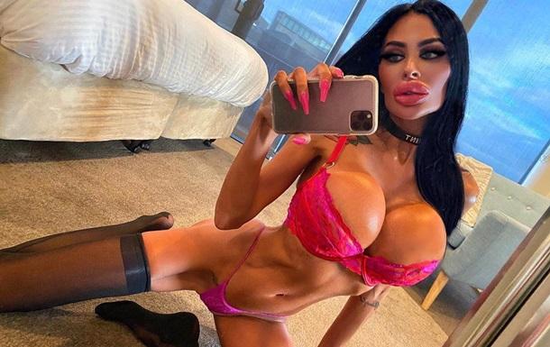 Увеличившая губы и грудь медсестра разбогатела на своих эротических фото