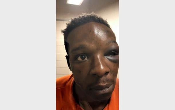 У США звільнили заступника шерифа за побиття афроамериканця