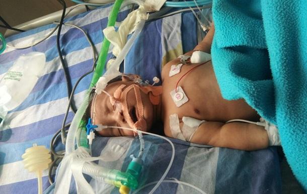 Вчені підрахували кількість загиблих немовлят через брудне повітря