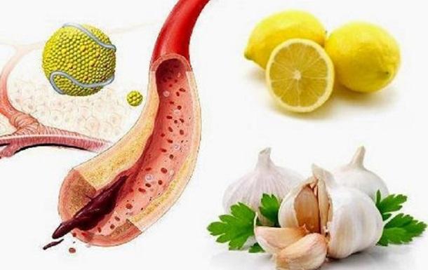 Назван топ-10 продуктов, очищающих артерии