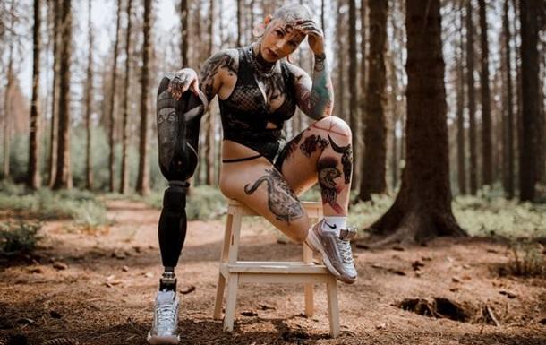 Немка попросила ампутировать ей ногу и  обрела новую жизнь