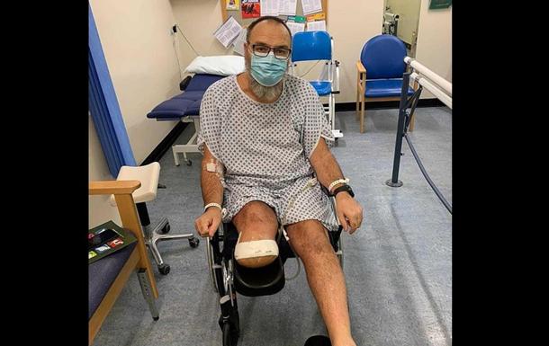 Мужчина лишился ноги после того, как заболел COVID-19