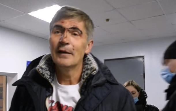 В Николаеве жестко задержали экс-нардепа
