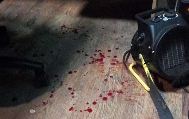 'Напали сзади': в Черкассах чиновник мэрии с помощником избил журналиста