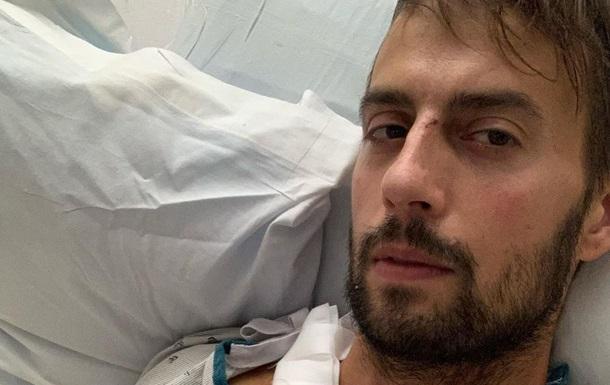 Був на волосині від смерті: поранений помічник Леді Гаги отямився