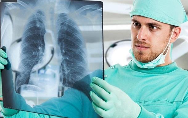 Влада має намір подолати епідемію туберкульозу в Україні до 2030 року