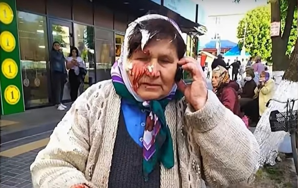 На Рівненщині пенсіонерці розбили голову банкою сметани