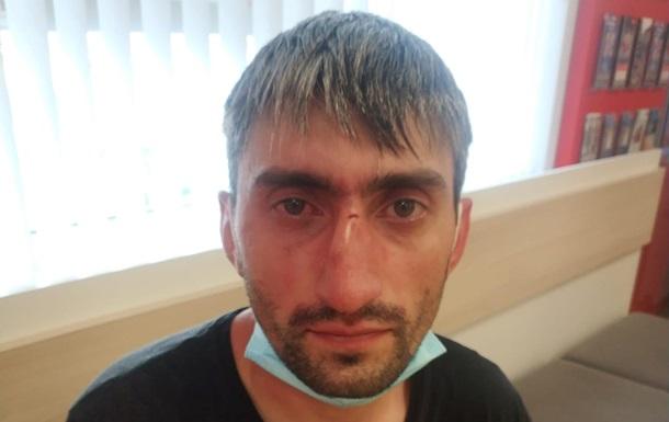 В Киеве избили антимайдановца  Топаза