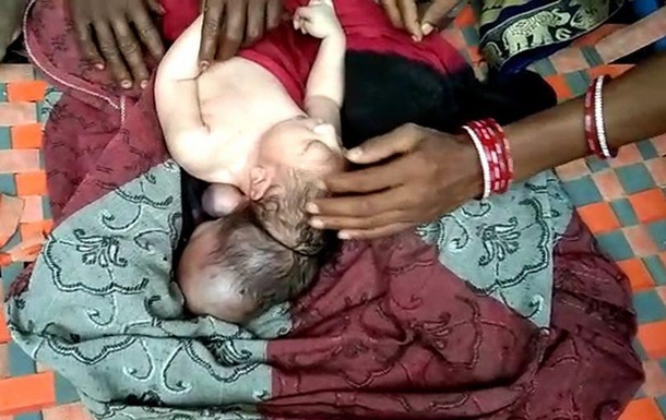 В Індії народилося триголове немовля