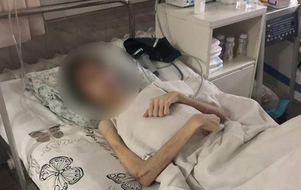 Житель Одессы морил сына голодом