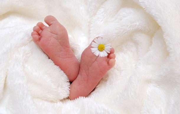 В Ізраїлі у новонародженої виявили близнюка у шлунку