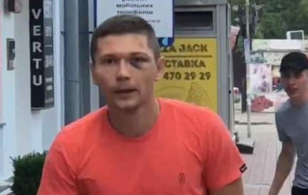 Танцора Дорофеевой избил сотрудник госохраны