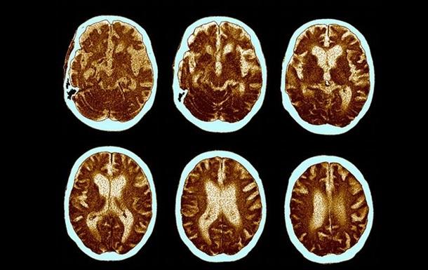 Дослідження: білок з печінки може провокувати розвиток хвороби Альцгеймера