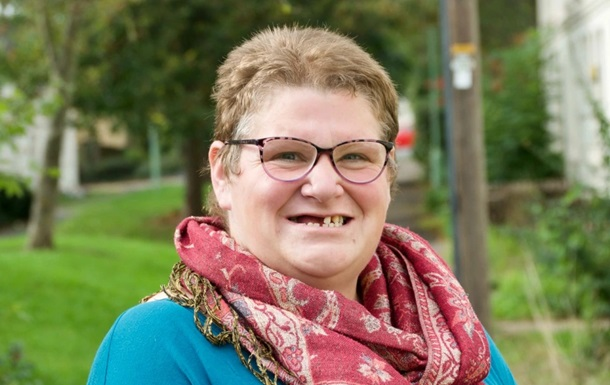 Не знайшла безкоштовного стоматолога: британка вирвала собі 11 зубів