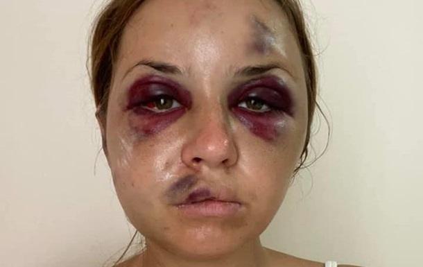 Побита в поїзді жінка відсудила в УЗ компенсацію в 100 тисяч